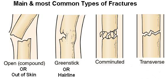 fracture care, Human Body